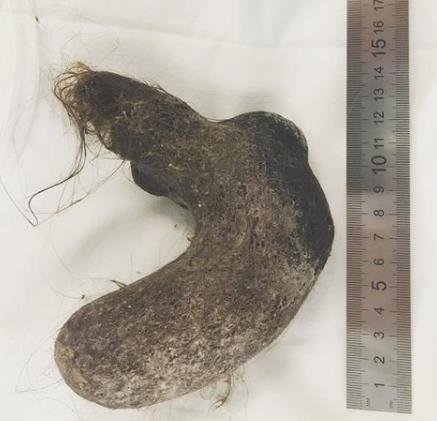 胃から髪の毛